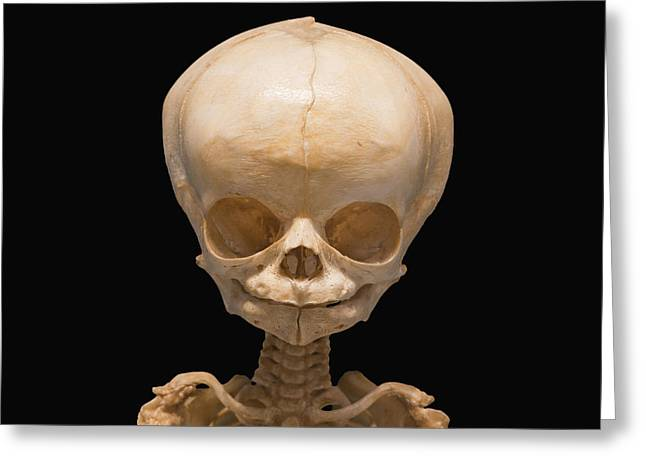 Fetal Skull At 7 Months Greeting Card by Science Stock Photography
