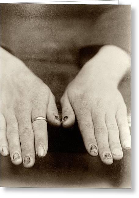Fingernail Loss Due To Syphilis Greeting Card