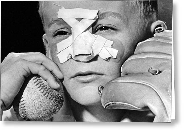 Fly Ball Gives Broken Nose Greeting Card