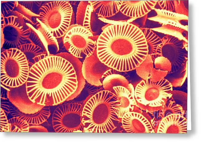 Fossilized Coccoliths, Emiliania Greeting Card by Biophoto Associates