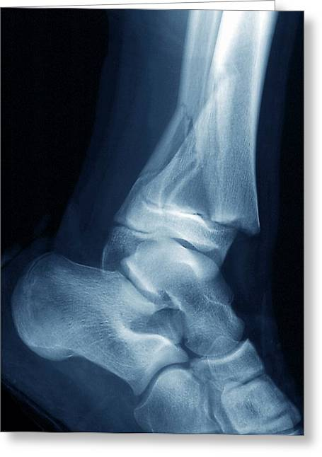 Fractured Ankle Greeting Card