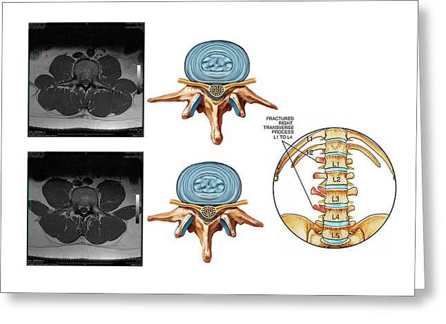 Fractured Lumbar Vertebral Processes Greeting Card by John T. Alesi