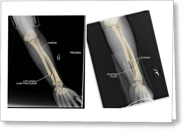 Fractured Ulna Bone And Fixation Greeting Card by John T. Alesi