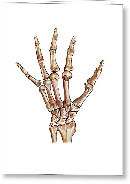 Fractured Wrist And Hand Bones Greeting Card