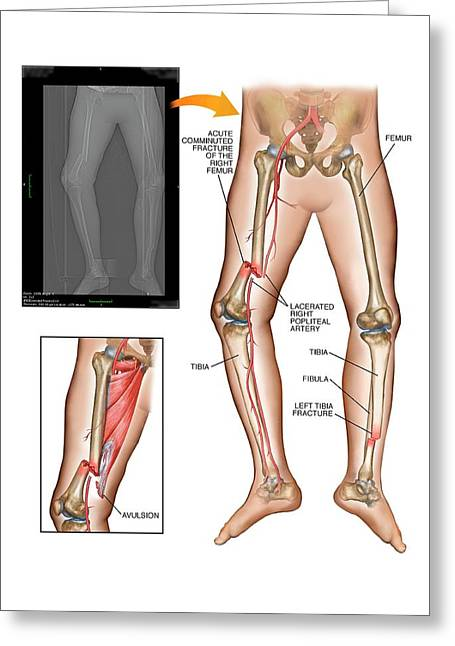Fractures Of Femur And Tibia Greeting Card by John T. Alesi