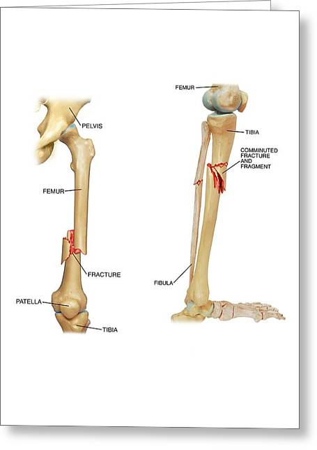Fractures Of The Femur And Tibia Greeting Card by John T. Alesi