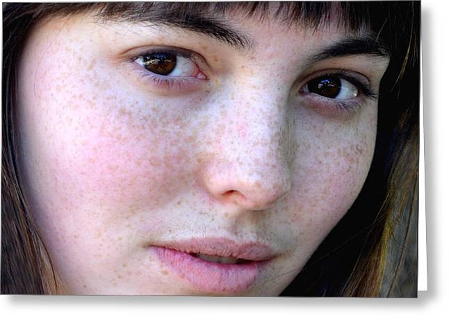Freckle Faced Beauty Model Closeup IIi Greeting Card