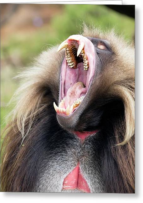 Gelada Male Yawning Greeting Card by Peter J. Raymond