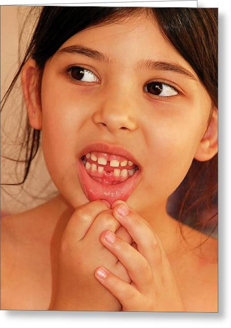 Girl With Missing Tooth Greeting Card