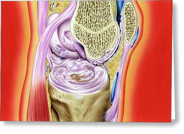 Gout In Knee Joint Greeting Card