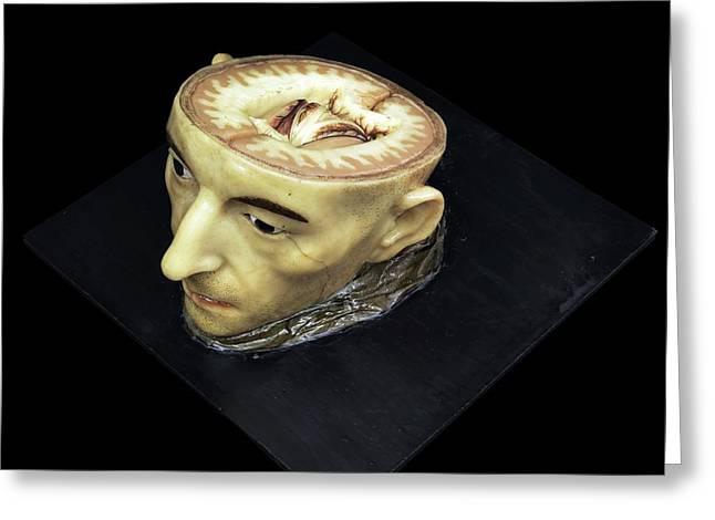 Head And Brain Model Greeting Card by Javier Trueba/msf