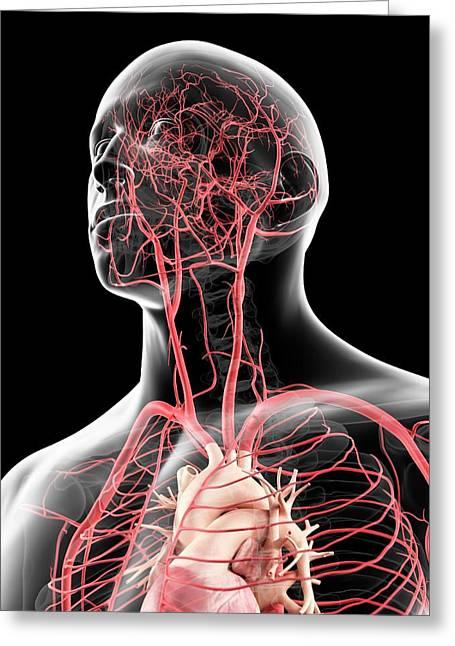 Head Arteries Greeting Card by Sciepro