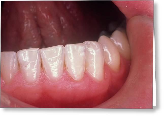 Healthy Teeth Greeting Card by Cnri Y