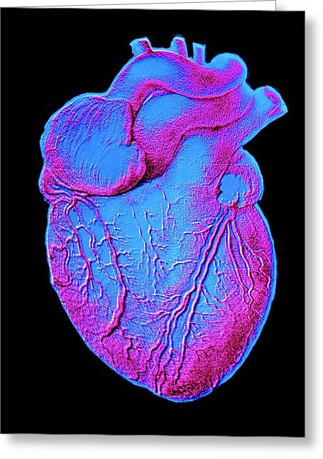 Heart Artwork Greeting Card by Alain Pol, Ism/science Photo Library