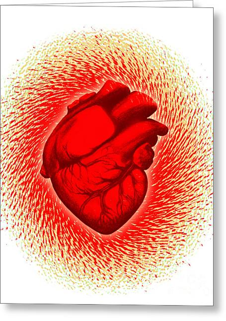 Heart Attack Greeting Card
