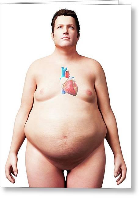 Heart Of Overweight Man Greeting Card by Sebastian Kaulitzki
