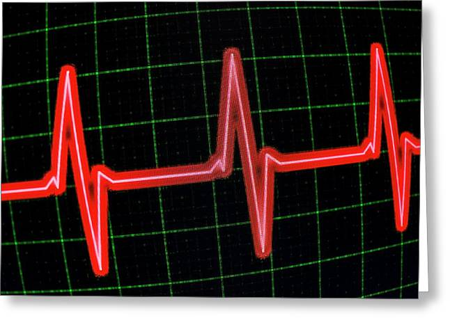 Heartbeat Trace Greeting Card by Daniel Sambraus