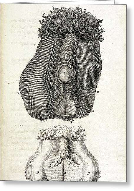 Hermaphrodite Sex Organs Greeting Card by British Library