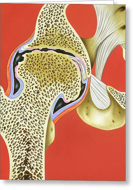 Hip Joint Pannus Formation Greeting Card by John Bavosi