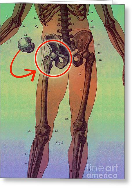 Hip Replacement Greeting Card by Dennis D Potokar