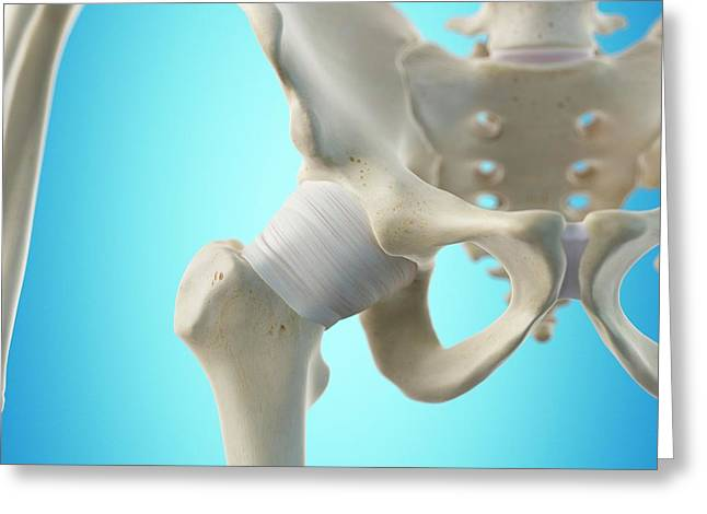 Hip Tendon Greeting Card by Sciepro