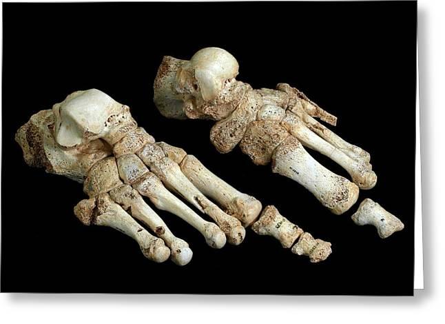 Homo Heidelbergensis Fossil Foot Bones Greeting Card by Javier Trueba/msf