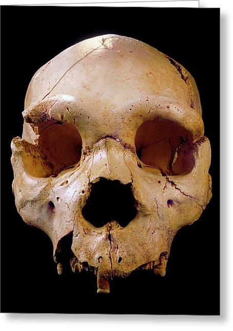 Homo Heidelbergensis Skull (cranium 5) Greeting Card by Javier Trueba/msf