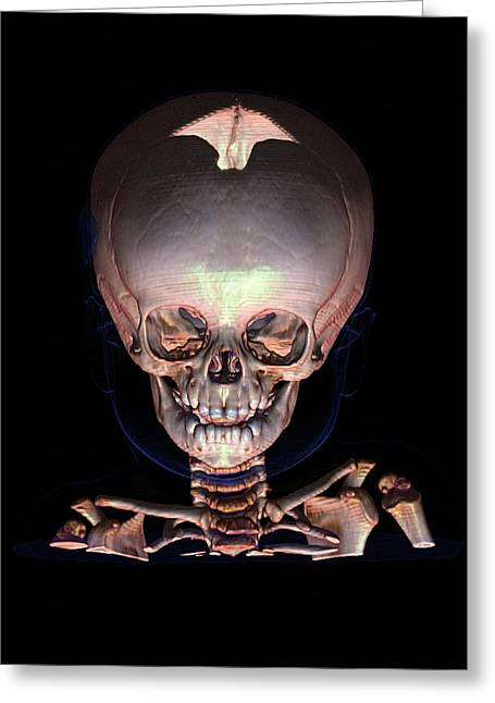 Human Baby's Skull Greeting Card by Anders Persson, Cmiv