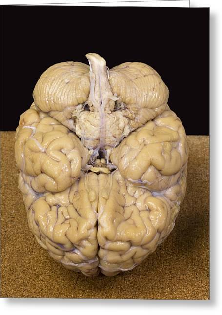 Human Brain, Inferior View Greeting Card