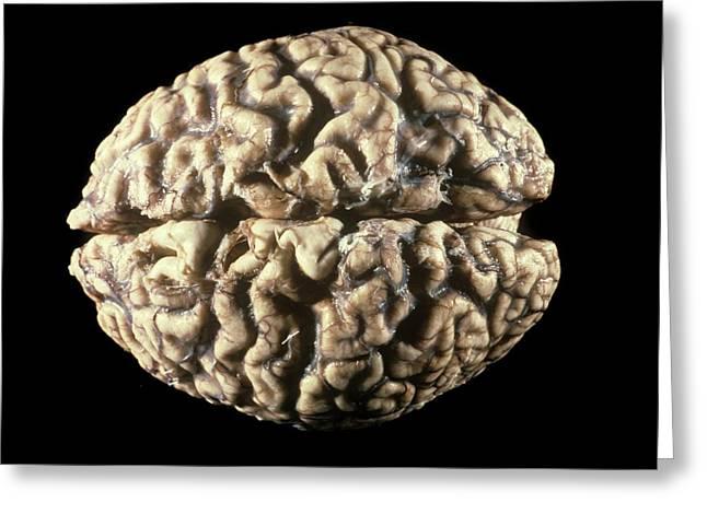 Human Brain Greeting Card by Pr. M. Forest - Cnri