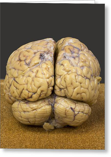 Human Brain, Rear View Greeting Card