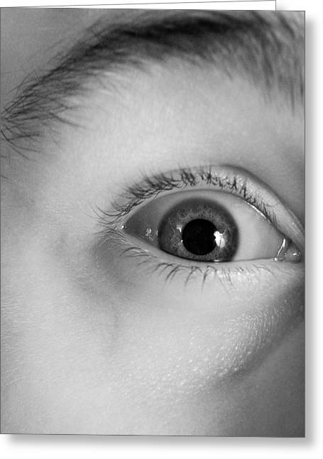 Human Eye, Infrared Image Greeting Card by Science Photo Library