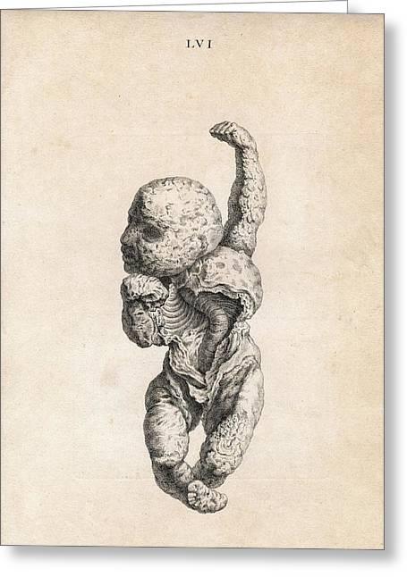 Human Foetus Greeting Card