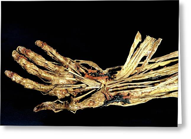 Human Hand Anatomy Greeting Card by Patrick Landmann/science Photo Library