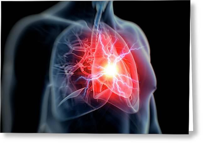Human Heart Attack Greeting Card by Sebastian Kaulitzki