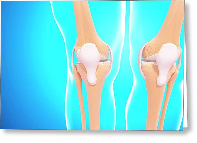 Human Knee Joints Greeting Card by Pixologicstudio