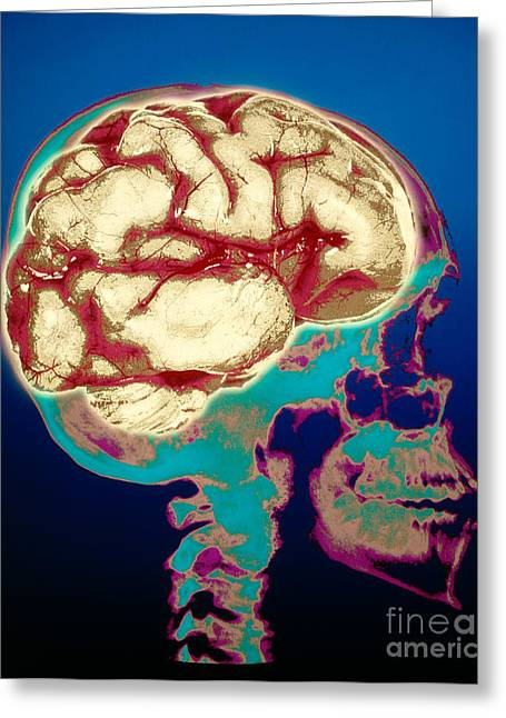 Human Skull X-ray With Digitized Brain Greeting Card