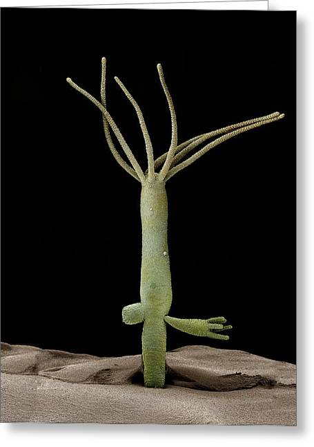 Hydra Budding Greeting Card by Science Photo Library