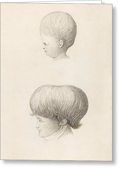 Hydrocephalus In Child And Adult Greeting Card by King's College London