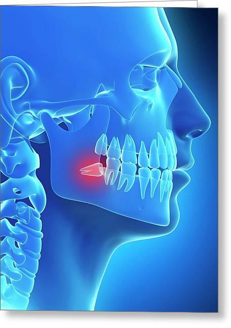 Impacted Wisdom Tooth Greeting Card by Sebastian Kaulitzki