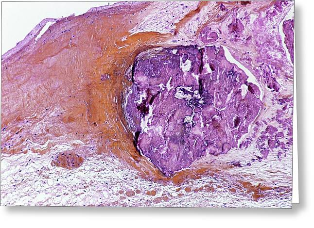 Infective Endocarditis Greeting Card by Pr. D. Christol - Cnri