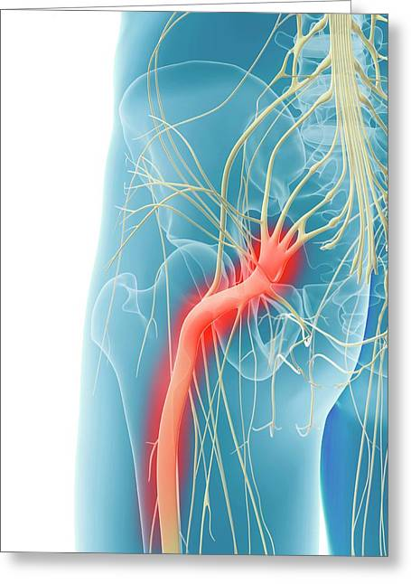 Inflamed Sciatic Nerve Greeting Card by Sciepro