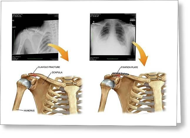 Internal Fixation Of Broken Collar Bone Greeting Card by John T. Alesi
