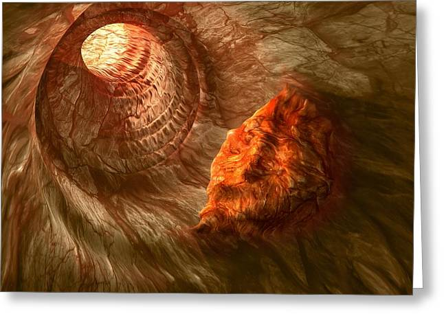 Intestinal Tumour, Artwork Greeting Card by Science Photo Library