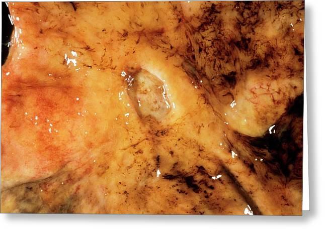 Intestinal Ulcer Greeting Card by Cnri