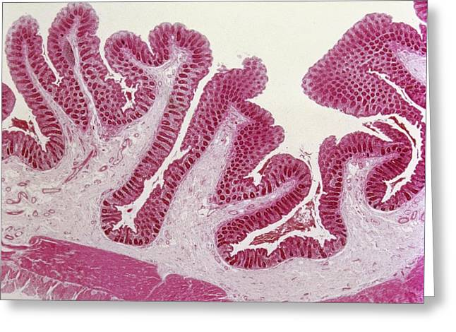 Intestinal Villi Greeting Card by Overseas/collection Cnri/spl