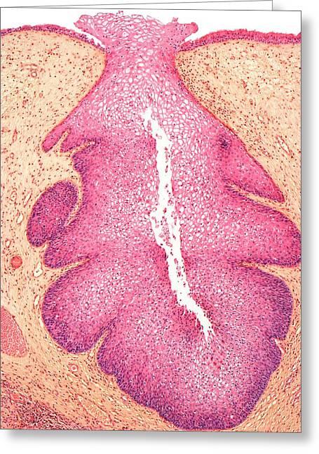 Inverted Nasal Papilloma Greeting Card