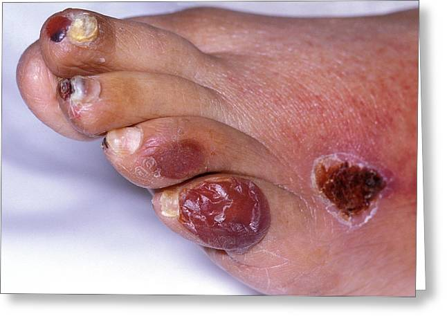 Ischaemic Foot Greeting Card by Dr M.a. Ansary/science Photo Library