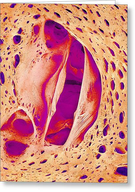 Japanese Pilchard Heart Valve, Sem Greeting Card by Science Photo Library