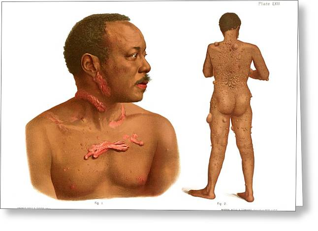 Keloids And Fibromas Greeting Card by Us National Library Of Medicine/science Photo Library